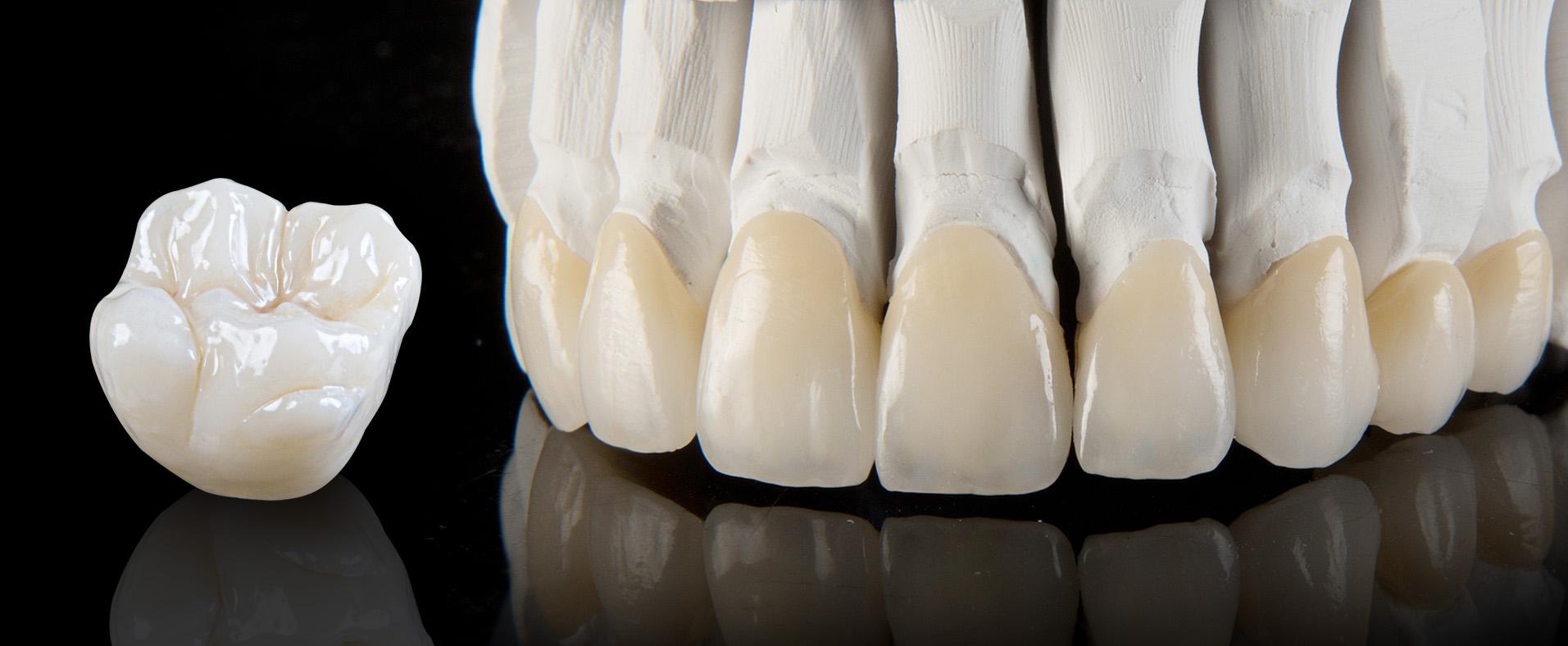 premium_dental_4